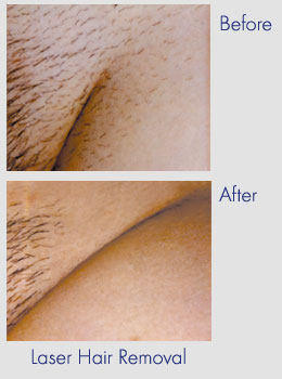 removal area laser bikini hair After before