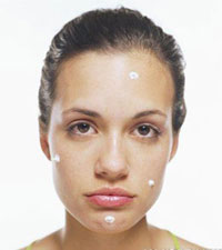 How To Get Rid Of Pimples And How To Treat Pimples - Beauty and ...